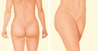 Liposuction Area2